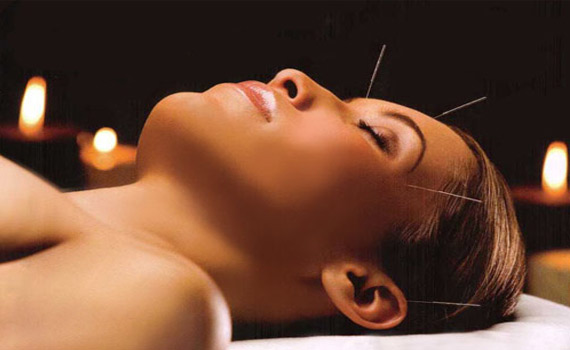 Acupuncture Provides True Pain Relief in Study