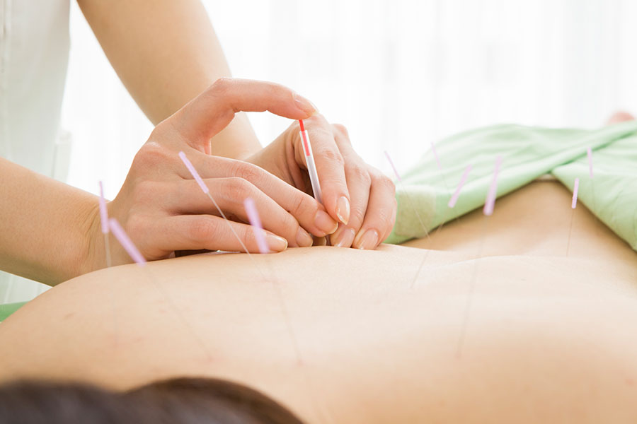 DISCOVER THE BENEFITS OF ELECTRO-ACUPUNCTURE
